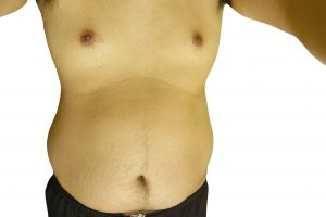 testosterone and body fat